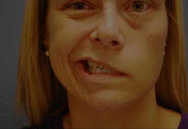 Paralysis and Facial Paralysis